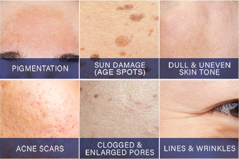Dr. LeWinn's Reversaderm targets multiple skincare concerns for a flawless complexion such as pigmentation, sun damage, age spots, dull uneven skin tone, acne scars, clogged pores, and lines & wrinkles.